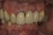 1-preoperative-retracted-picture-of-failing-teeth-and-immediate-denture