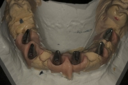 15-traditional-model-in-stone-fabricated-with-soft-tissue-model-showing-permanent-abutments-in-situ