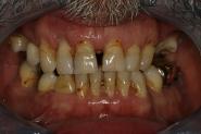 1-preoperative-failing-teeth
