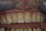 13-2-week-review-of-removable-bridge-in-retracted-picture