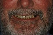 2-smile-zone-of-failing-teeth