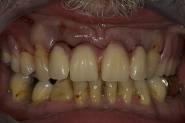 5-temporary-denture-fitted-immediately-after-extraction-of-failed-teeth
