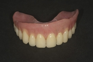 12-implant-overdenture-fabricated