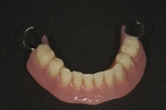 14-new-lower-denture-made-to-match-upper