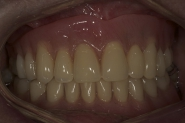 17-dentures-in-situ-biting-together