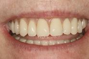 18-smile-of-final-dentures