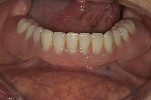 How Much Are Dentures >> Case Study 5 – Replacement of all teeth - Cirencester Dental Implant Clinic