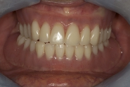 11-relationship-of-upper-and-lower-dentures-together