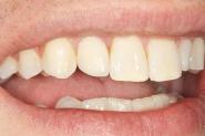 13-post-op-smile-of-rhs