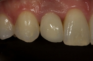 14-post-op-close-up-of-fitted-permanent-crown
