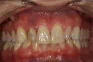 2-preop-old-crown-in-situ-with-smile