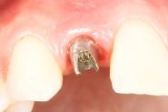 9-permanent-abutment-tightened-in-situ
