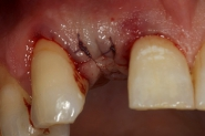 5-implant-surgery-closed-over