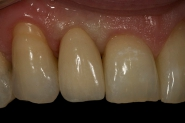 8-post-op-close-up-of-fitted-implant-crown