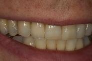 9-smile-post-op-after-2-weeks