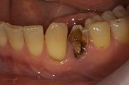 1-preop-broken-tooth