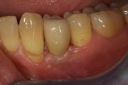 8-implant-crown-fitted-in-situ