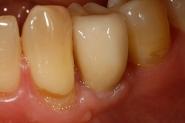 9-implant-crown-2-week-review
