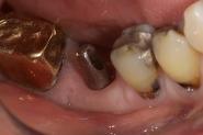 9-implant-abutment-in-situ