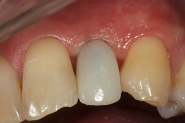 10-implant-temporary-crown-in-situ