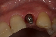 11-implant-abutment-gum-profile