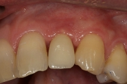 12-implant-crown-fitted