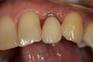 6-implant-placed-and-denture-seated