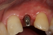 8-implant-abutment-seated
