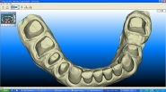 14-iteor-scan-taken-during-implant-healing-phase-to-fabricate-lower-crowns