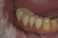 15-during-implant-healing-phase-lower-right-crowns-constructed
