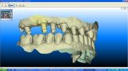 18-itero-digital-scan-of-implant-fixture-scan-bodies
