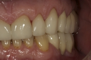 19-upper-left-hand-side-crowns-fitted-and-front-crowns-tried-in-situ