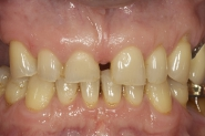 2-close-up-preoperative-of-very-worn-teeth