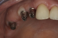 21-implant-fixture-abutments-connected-from-itero-model-and-scan