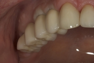 23-view-of-permanent-implant-restorations-tried-in