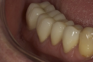 25-3-month-review-of-lower-right-crowns