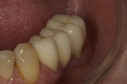26-3-month-review-of-lower-left-crowns