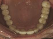 28-mirror-view-of-upper-restored-teeth