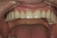 29-3-month-review-of-upper-teeth