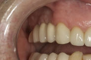 30-3-month-review-of-implant-restorations