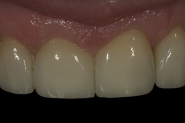 31-3-month-review-close-up-of-permanent-front-crowns