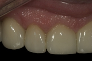 32-3-month-review-close-up-of-upper-front-right-crowns