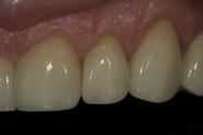 33-3-month-review-close-up-of-upper-front-left-crowns