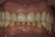 34-3-month-review-of-final-restorative-outcome