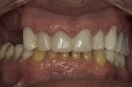 5-provisional-temporary-crowns-in-situ-after-3-months-made-from-planned-diagnostic-wax-up