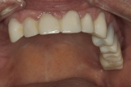 7-upper-arch-provisional-crowns-made-from-diagnostic-wax-up