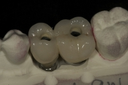 10-screw-retained-permanent-crowns-on-itero-model
