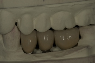 10-implant-crowns-on-models