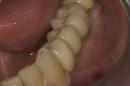 13-final-implant-crowns-in-situ