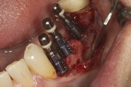 3-implants-placed-in-situ